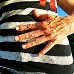 Czym jest przepuklina pachwinowa? Poznaj jej objawy, przyczyny i leczenie
